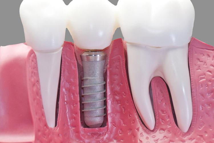 Home - Merivale Dental Centre